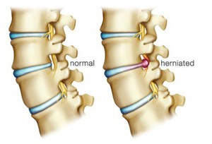 what does herniated disc lower back pain feel like, Human Body